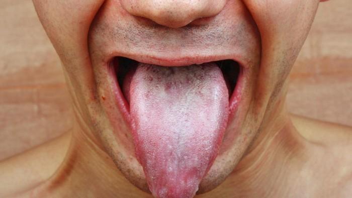 Gejala Kanker Mulut yang Patut Diwaspadai